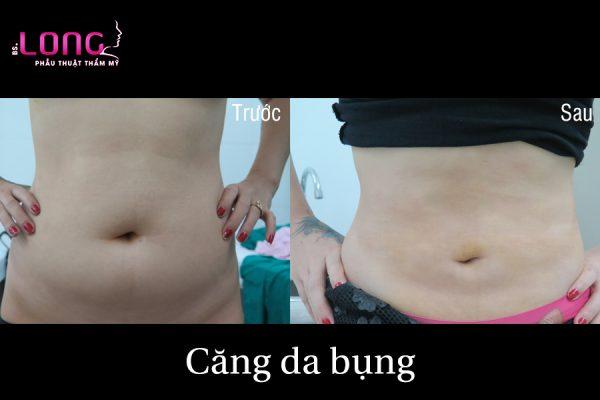 cang-da-bung-1