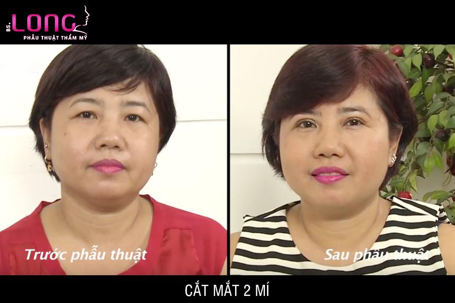 cat-mat-2-mi-1