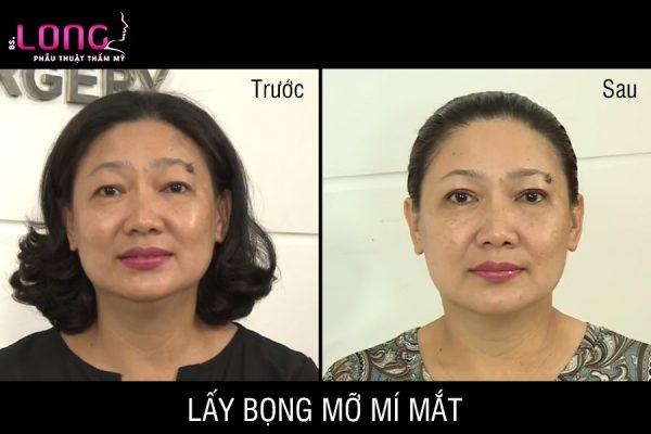 lay-da-du-bong-mo-mi-mat-1