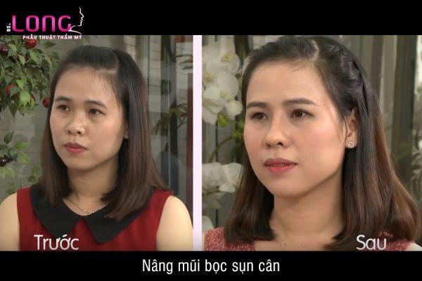 nang-mui-boc-sun-can-1