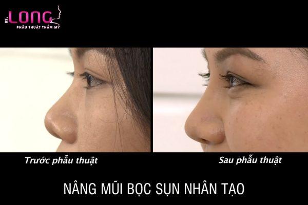 nang-mui-boc-sun-nhan-tao-1