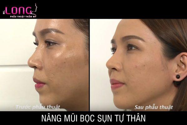 nang-mui-boc-sun-tu-than-1