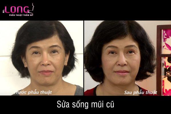 sua-song-mui-cu-1