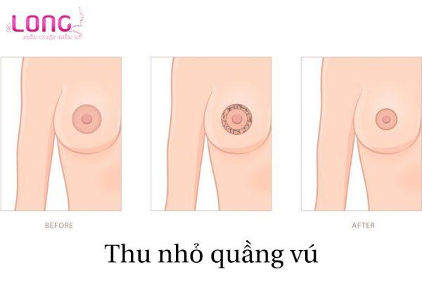 thu-nho-quang-vu-1