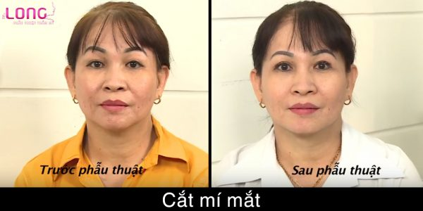 cat-mat-2-mi-co-gay-nguy-hiem-gi-khong