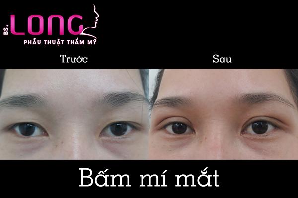 bam-mat-2-mi-han-quoc-sung-bao-lau-1