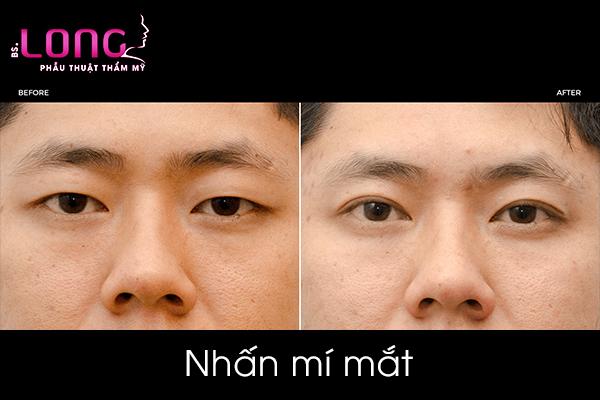 bam-mi-mat-cho-nam-gioi-co-dep-khong-1