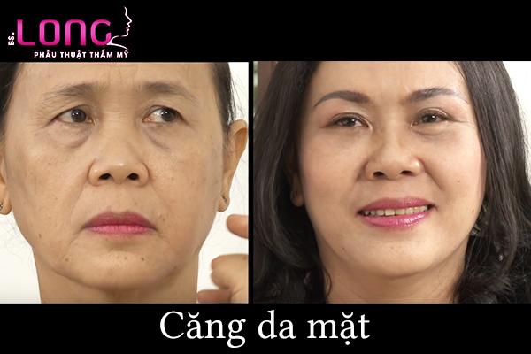 cang-da-mat-phau-thuat-co-de-lai-seo-khong-1