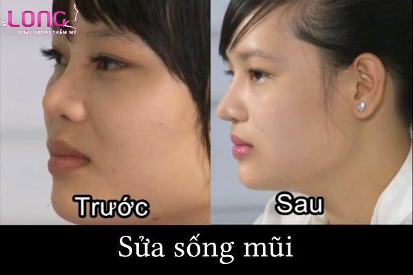 sua-song--mui-cu-co-de-lai-seo-khong
