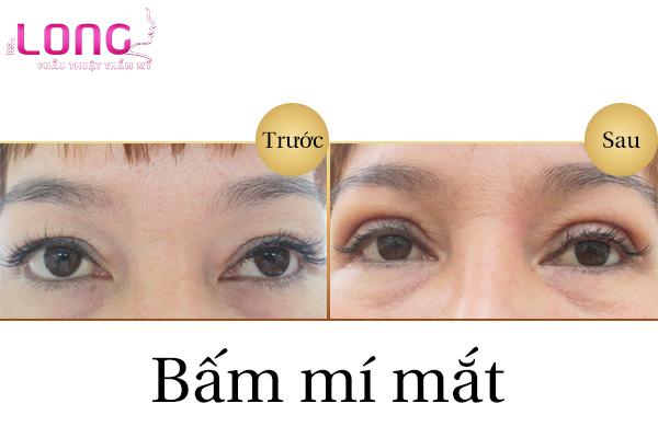 bam-mi-mat-co-dau-khong-1