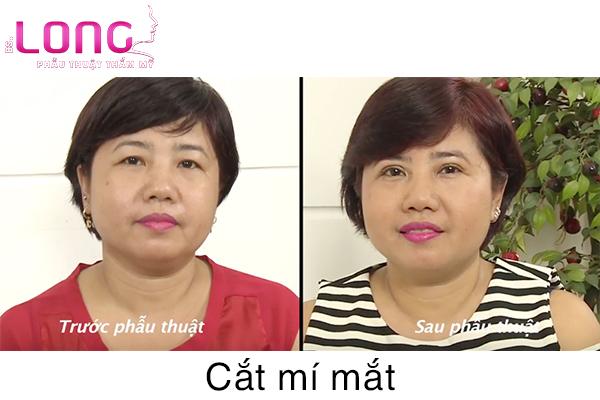cat-mat-2-mi-bao-lau-thi-lanh-1