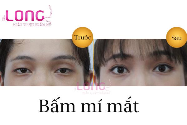 bam-mi-mat-khong-can-phau-thuat-giu-duoc-bao-lau-1