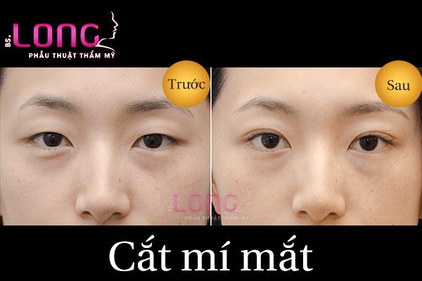 bam-mi-mat-va-cat-mi-mat-khac-nhau-nhu-the-nao-1