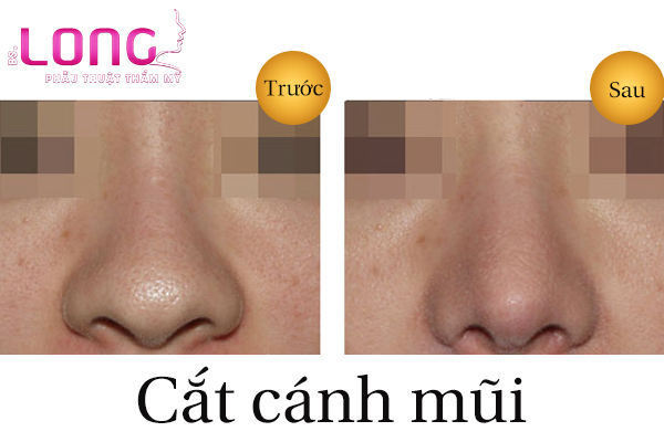 cat-canh-mui-co-dau-va-de-lai-seo-khong