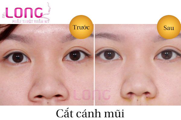 cat-canh-mui-tai-tham-my-vien-bs-long-1