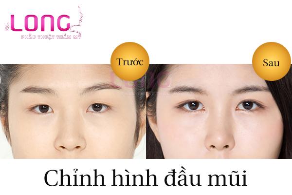 chinh-hinh-dau-mui-bao-lau-thi-lanh-1