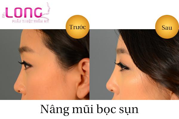 nang-mui-bang-sun-nhan-tao-co-an-toan-khong-1