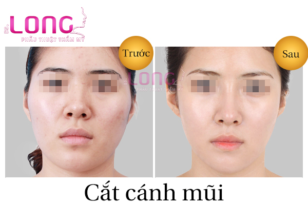 cat-canh-mui-noi-soi-la-gi-va-lam-nhu-the-nao-1