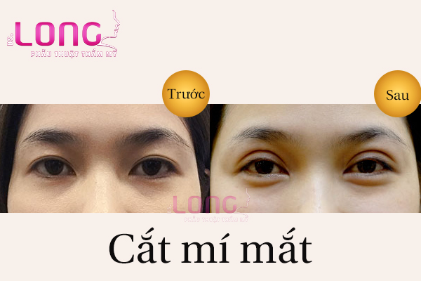 cat-mat-2-mi-la-gi-va-cat-mat-nhu-the-nao-1