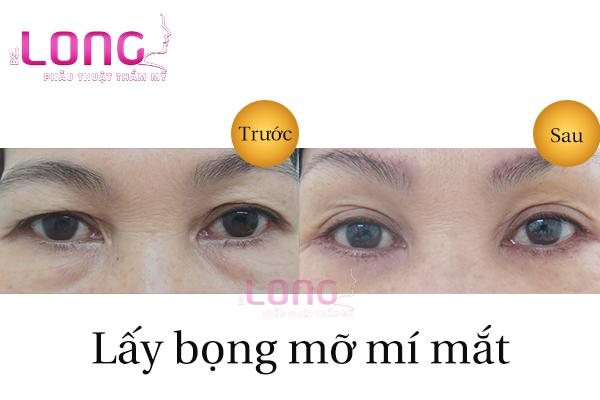 lay-da-du-bong-mo-quanh-mat-noi-soi-1