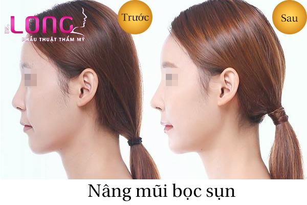 nang-mui-boc-sun-nhan-tao-gia-bao-nhieu-1