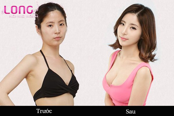 nang-tui-giot-nuoc-uy-tin-tai-tphcm-1