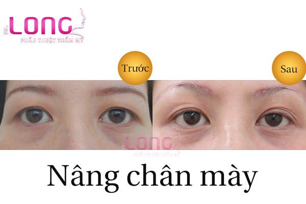 phau-thuat-nang-cung-chan-may-o-dau-dep-1
