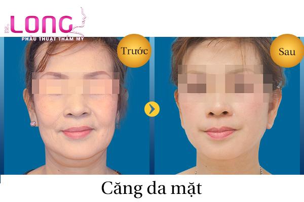 cang-da-mat-khong-phau-thuat-co-de-lai-seo-khong