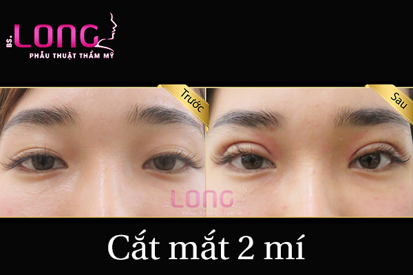 cat-mat-may-ngay-thi-het-sung-dau-1