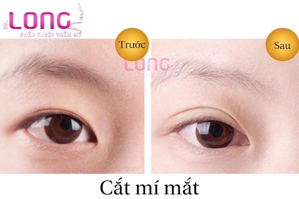 cat-mi-mat-xong-nen-kieng-an-mon-gi-1