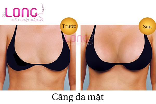 nang-nguc-su-dung-duoc-bao-lau-1