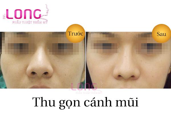 phau-thuat-thu-gon-canh-mui-co-dau-khong-1