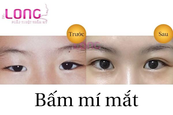 bam-mi-mat-vinh-vien-gia-bao-nhieu-tien-1