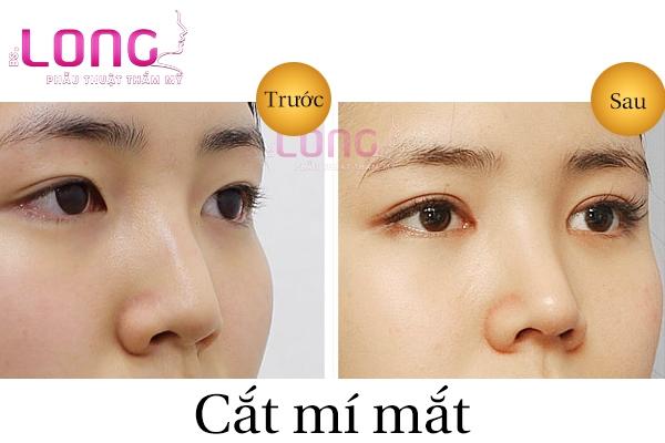 cat-mi-mat-to-tron-o-dau-dep-va-uy-tin-tai-tphcm-2