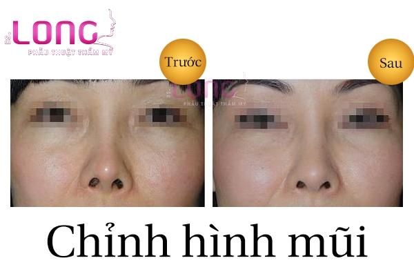 chinh-hinh-mui-co-de-lai-seo-khong-1