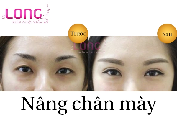nang-chan-may-bac-si-long-bao-nhieu-tien-1