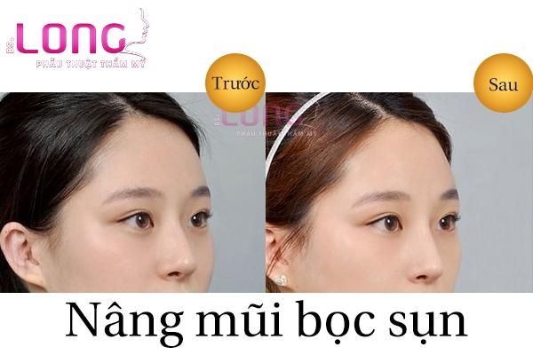 nang-mui-sun-nhan-tao-uy-tin-tai-tphcm-2