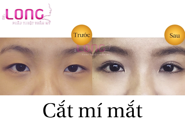 o-dau-cat-mi-mat-dep-va-vinh-vien-tai-tphcm-1