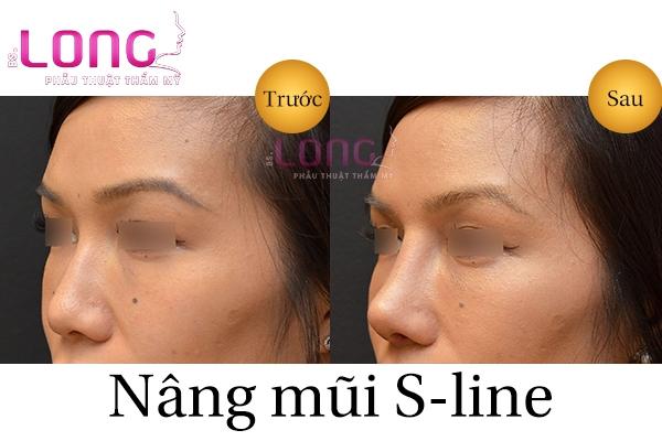 nang-mui-s-line-sung-bao-lau-thi-dep-tu-nhien-1