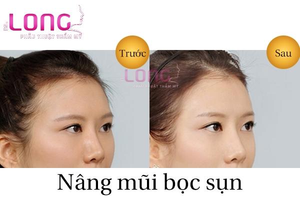 nang-mui-xong-can-an-kieng-nhung-gi