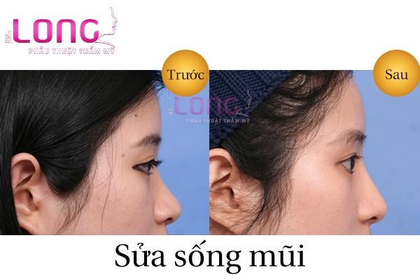sua-song-mui-sau-bao-lau-thi-lanh-2