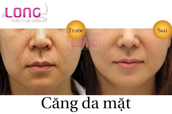 cang-da-mat-phau-thuat-co-dau-khong-1