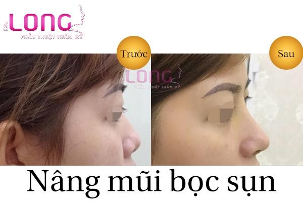 nang-mui-boc-sun-can-co-de-lai-seo-khong-1