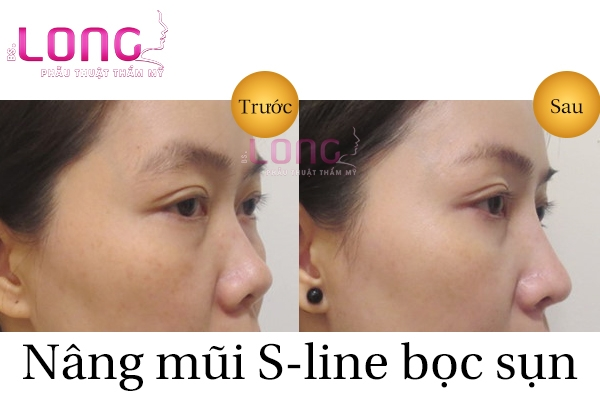 nang-mui-sline-boc-sun-tu-than-co-de-lai-seo-khong-1