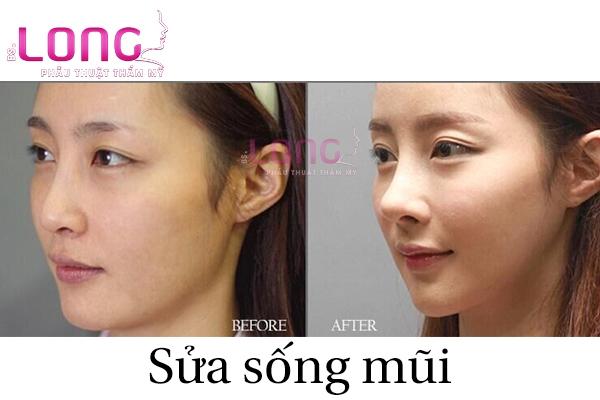 sua-song-mui-co-dau-va-de-lai-seo-khong-1