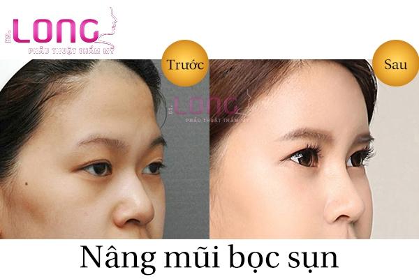 nang-mui-bang-sun-tu-than-chi-phi-co-dat-khong-1
