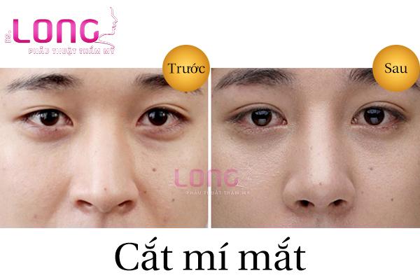 su-khac-biet-cua-cat-mat-2-mi-cho-nam-va-nu-2