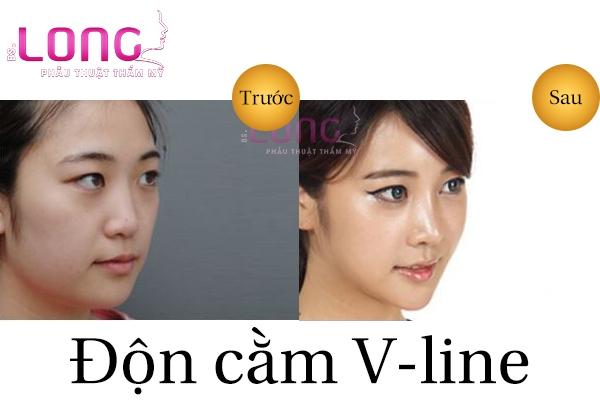 don-cam-vline-co-seo-khong-2