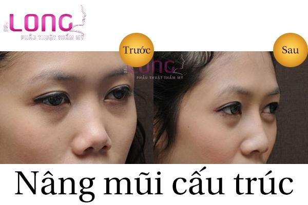 nang-mui-cau-truc-4d-la-gi-1