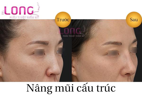 nang-mui-cau-truc-co-can-sieu-am-khong-2
